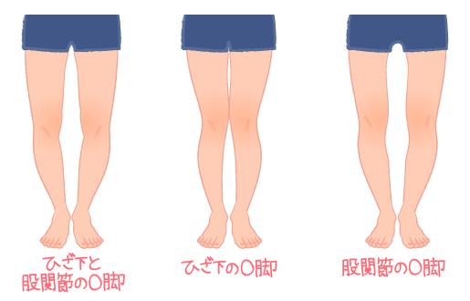 足をまっすぐにするエクササイズ!